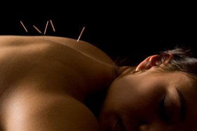 Acupuncture Back Pain
