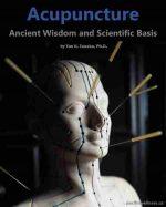 Acupuncture – Ancient Wisdom and Scientific Basis