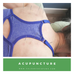 Located at: Alpine Sport Therapy